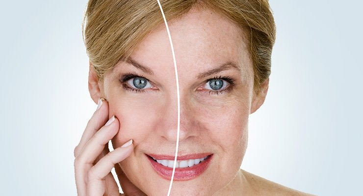 Photo of face needling