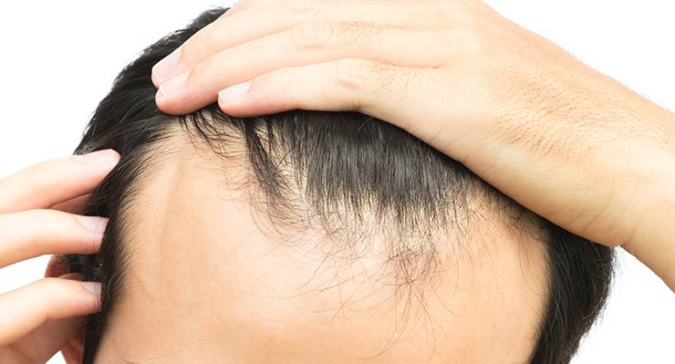Photo of PRP injection for hair loss